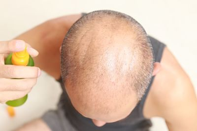 A man applying a DHT blocker spray to his balding scalp