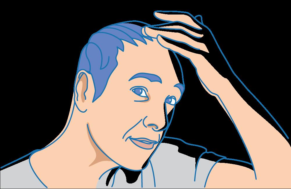 A man inspecting his scalp for sebum buildup