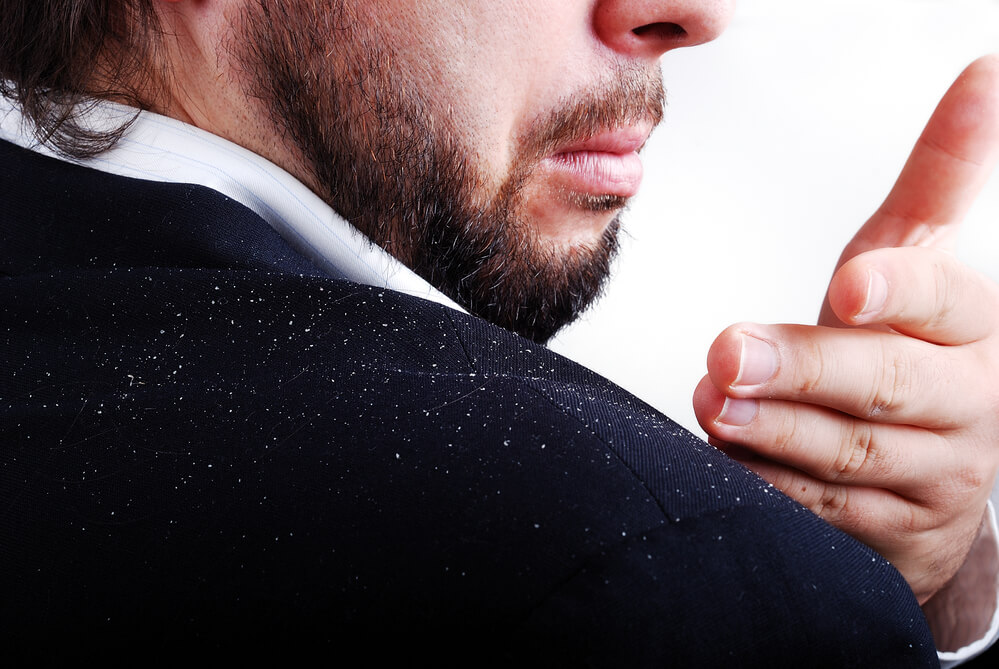 A man brushing dandruff flakes from his shoulder
