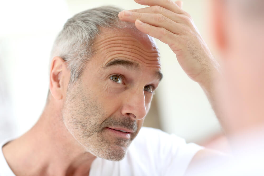 A man suffering from scalp tension and hair loss