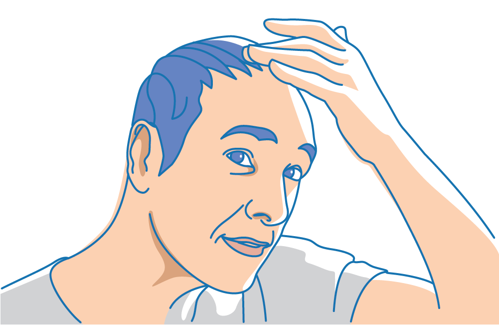 A man inspecting his scalp for sebum buildup