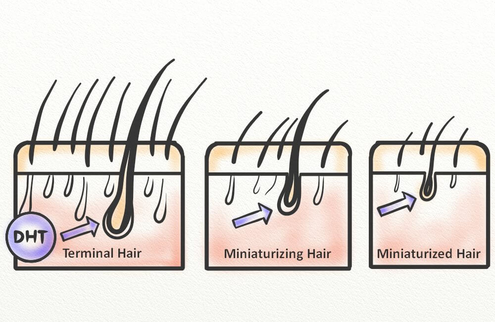 A diagram showing hair follicle miniaturization