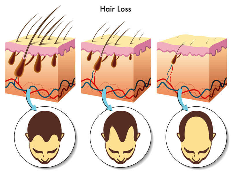 The process of hair follicle miniaturization in hair loss