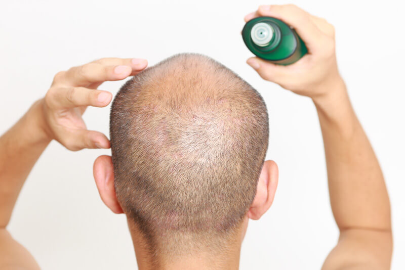 A man applying a topical hair loss treatment to his scalp